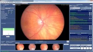 Spectra, diabetic eye screening software