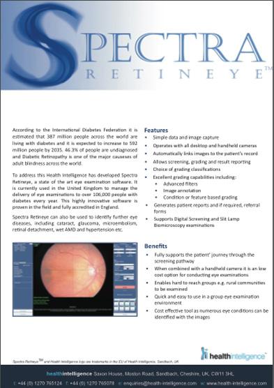 retinaeye